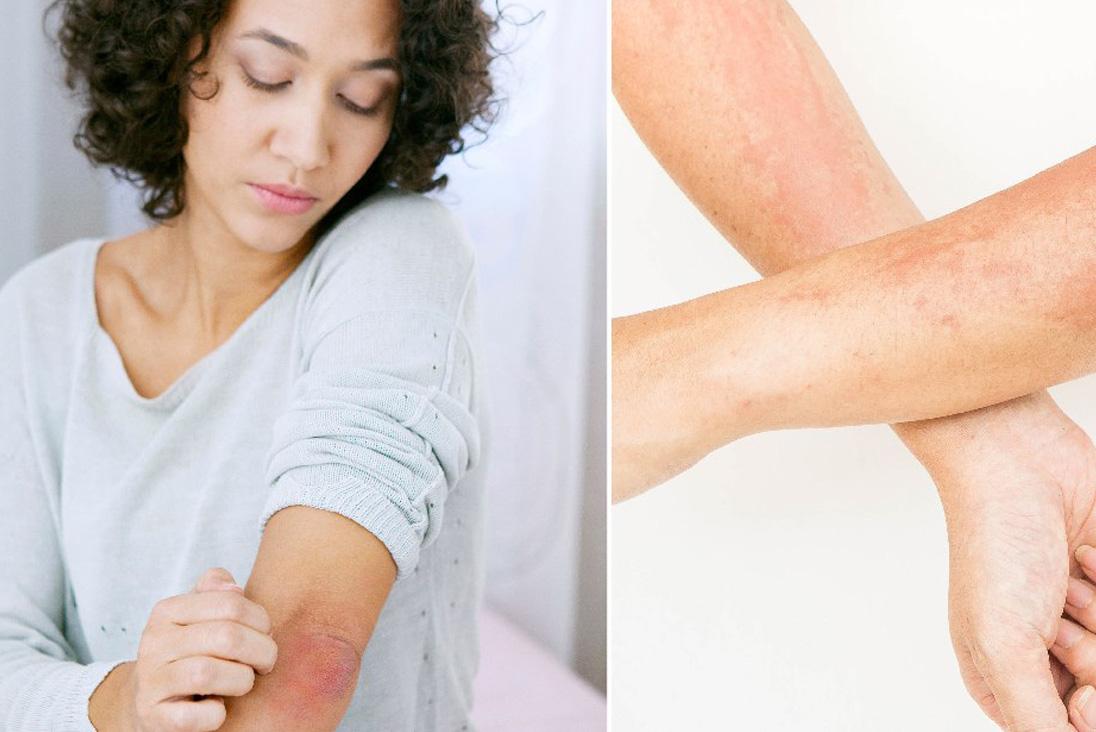 Istamina e orticaria nelle persone allergiche