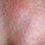 allergia al sole immagine